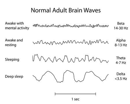 Normale Brain Waves EEG Standard-Bild - 18111272