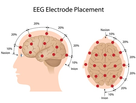temporal: EEG electrode placement