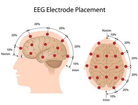 procedure: Posizionamento degli elettrodi EEG