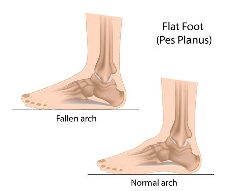 フラットの足  イラスト・ベクター素材
