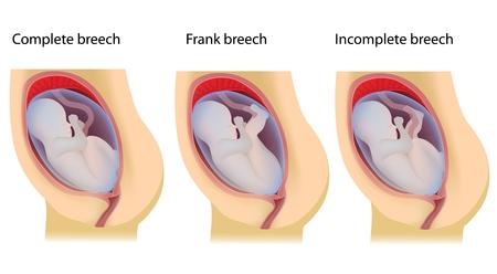 Types of breech birth positions