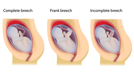uterine: Types of breech birth positions