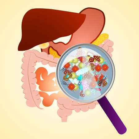 tract: Gastrointestinal tract in gastroenterology. Taking care of the stomach and liver, and human treatment of diseases associated with it. A variety of bacteria in the stomach under a magnifying glass.
