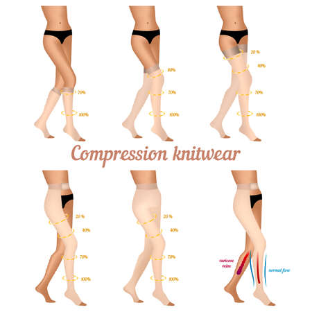 venous: Compression knitwear for varicose veins in the legs. Stockings to improve blood flow in the varicose veins. Vector illustration.