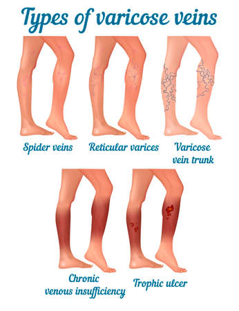 Types of varicose veins. Types of varicose disease in human legs. Vector illustration.