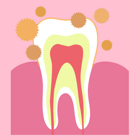 Tooth and plaque on a pink background. Vector illustration. Vettoriali