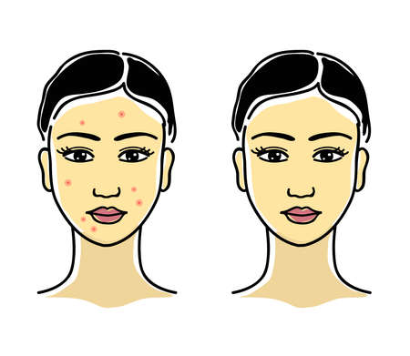 Girl with acne on her face. Girl with clean skin. Portrait. Vector illustration.