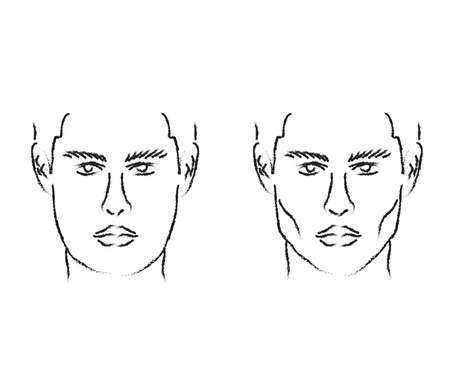 Silhouette of a male face on the background. Correction of the shape of the face and chin. Vector illustration. Vettoriali