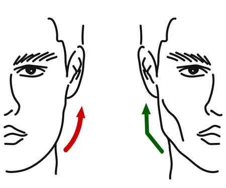 The man's face on a white background. Face correction. Vector illustration.