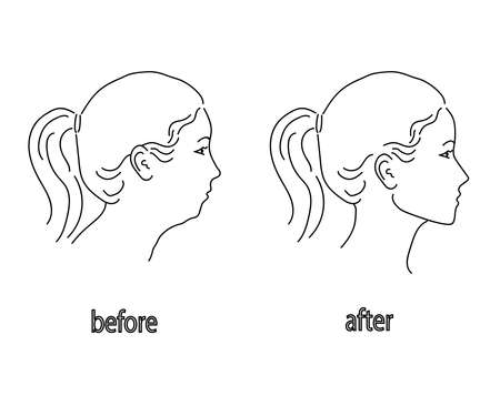 Silhouette of a female head on a white background. Facial correction and posture. Vector illustration.