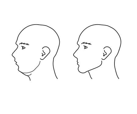 Head of a man on a white background. The chin. Vector illustration.