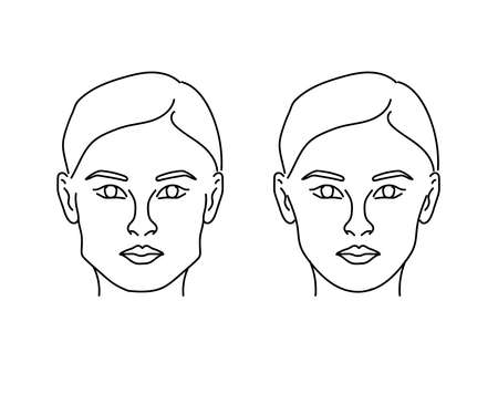 Silhouette of a female face on a white background. Correction of the lower jaw. Vector illustration. Vettoriali