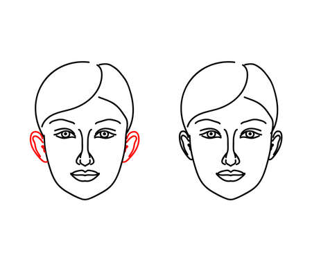 Woman's face on a white background. Protruding ears. Vector illustration. 矢量图像