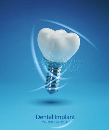 Vector template with realistic 3d prosthesis. Dental implant isolated on a blue background. Element for design. Ilustracja