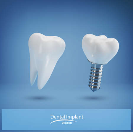 Vector with realistic dental implant and healthy tooth on a blue background. 3d. Element for design, layout template for dental clinics
