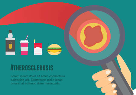 Atherosclerosis flat illustration. Atherosclerosis risk factors and causes.