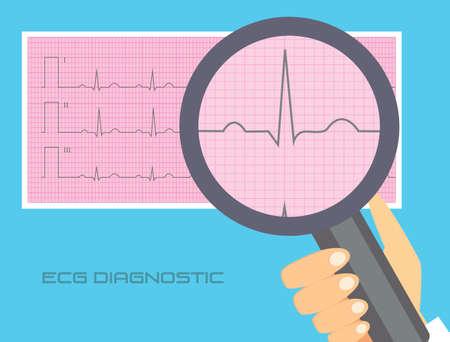 registering: Normal electrocardiogram vector illustration. ECG interpretation conceptual illustration