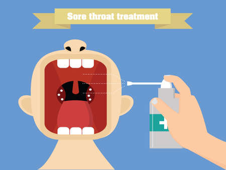 sore throat: Sore throat treatment with aerosol. Quinsy treatment conceptual illustration