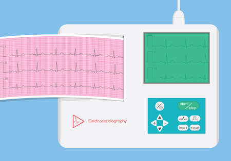 Electrocardiograph with monitor and ecg strip illustration Illustration
