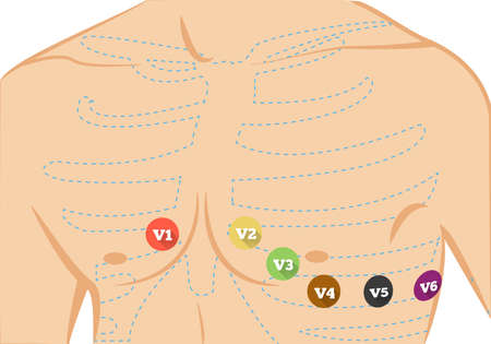 human chest: Chest ecg leads placement illustration. Six colored electrocardiography leads