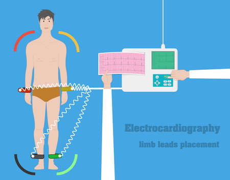 leads: Electrocardiography vector concept. ECG limb leads flat illustration Illustration