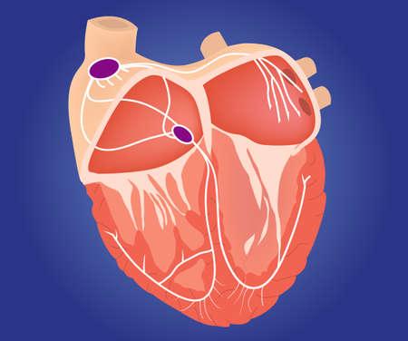 fibrillation: Heart conduction system illustration. Heart chambers with cardiac conduction system