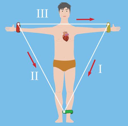 Einthoven's triangle vector illustration Vettoriali