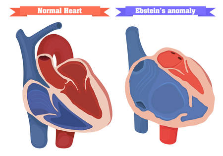 pediatrics: Ebstein anomaly vector illustration. Right ventricle dysfunction. Normal heart chambers anatomy vector illustration