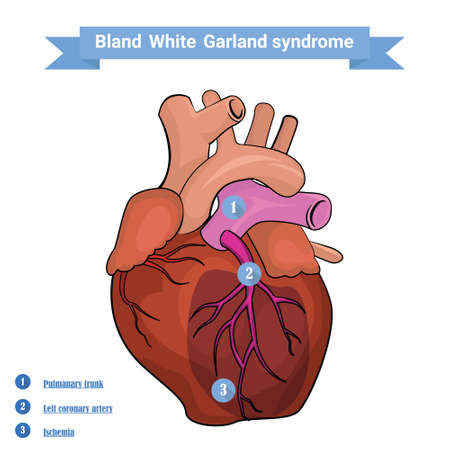 myocardium: Bland White Garland syndrome versus normal heart anatomy