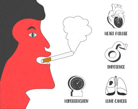 impotence: Health effects of cigarette smoking vector illustration. Lung cancer, high blood pressure, impotence and heart failure icons with smoking man. Illustration