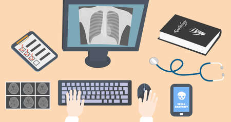 scans: Radiologist doctors workplace. Hands on keyboard and mouse with book, monitor, ct scans and stethoscope on table