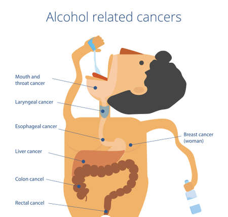 liver cancer: Alcohol causes seven cancers infographics. Man drinks spirits Illustration