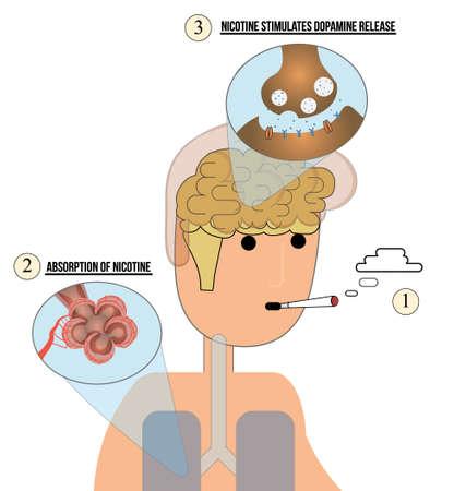 alveolos: mecanismo de adicción a la nicotina illustration.Addicted hombre que fuma Vectores