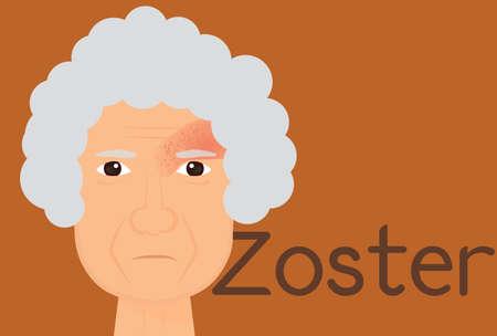 tejas: Mujer de edad avanzada que sufren de herpes zóster. Herpes zoster ilustración.