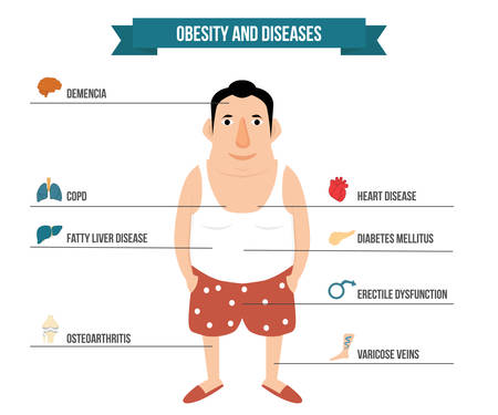 erectile dysfunction: Obesity and internal organ diseases illustration. Fat man with anatomy icon Illustration