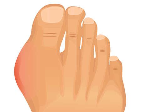Gout illustratie. Eerste metatarsofalangeale gewricht artritis vector
