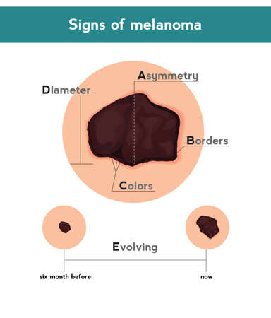 Melanoma ABCDE signs. Vector illustration of skin patch with skin cancer Ilustracja