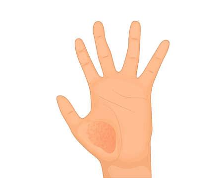 Eczema on hand. Skin disease vector illustration