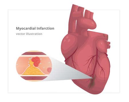 myocardial infarction: Myocardial infarction vector illustration. Cardiac infarct