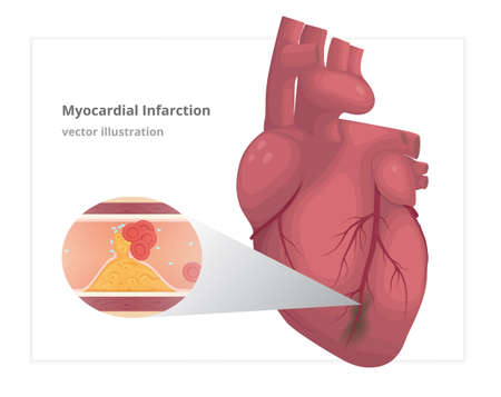 Myocardial infarction vector illustration. Cardiac infarct