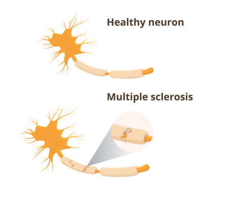 Normal neuron and multile sclerosis
