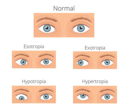 Strabismus vector illusration. Types of crossed eyes