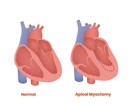 Apical myectomy and normal heart