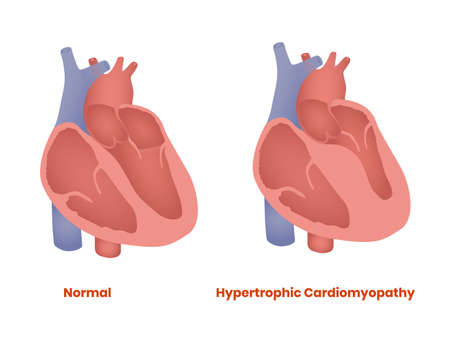 Normal heart and hypertrophyc cardiomyopathy illustration.