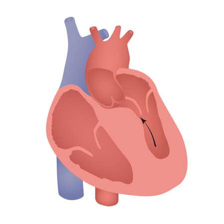Hypertrophic cardiomyopathy illustration.