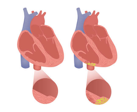 Healthy heart with arrhythmogenic cardiomyopathy. Vector illustration of arrhytmogenic right ventricular dysplasia Illustration