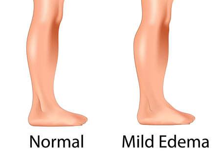 Pierna hinchada versus ilustración de vector de pierna normal.