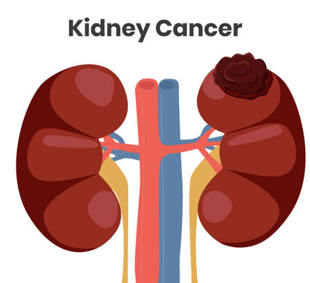 Vector illustration of the kidney cancer. The tumor is affecting left kidney while right kidney is normal. Clipart of the kidney disease