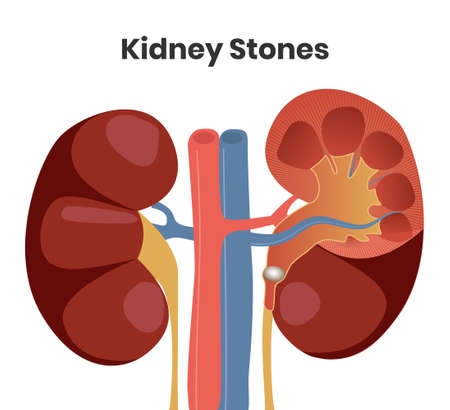 Vector illustration of the kidney stones. Obstruction of the right urether with the stone, while left kidney is normal Illustration