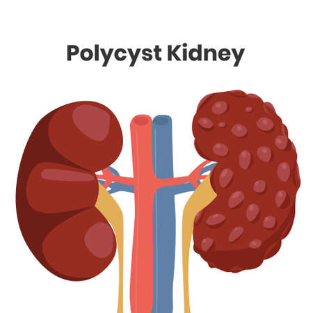 Vector illustration of the polycystic kidney disease, Affected organ is on the right with the illustration of the normal kidney structure is on the left